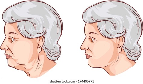 Face lift before and after treatment