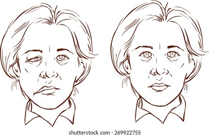 face paralysis illustration