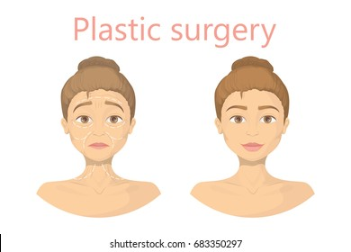 Face plastic surgery.