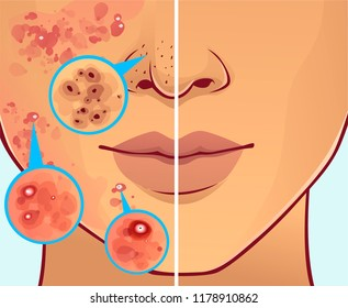 Face with skin problems. Before, after.  Vector illustration