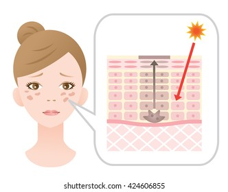 facial blotches and skin mechanism
