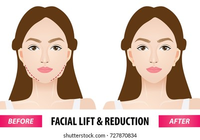 Rostros Mujeres Botox Stock Vectors, Images & Vector Art