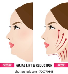 Facial lift and reduction vector illustration