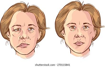 facial lopsided illustration