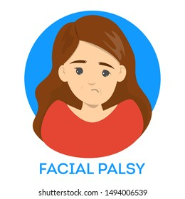 Facial palsy. Female character with assymetrical face, nerve damage. Drooping smile. Isolated vector illustration in cartoon style