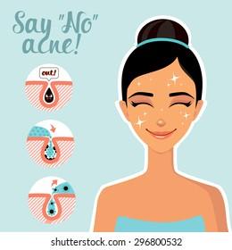 Facial Treatments. Infographics facials. Say no to acne!