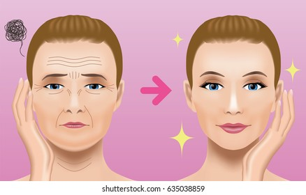Facial wrinkles treatment before after. cosmetic surgery. woman facial treatment concept.