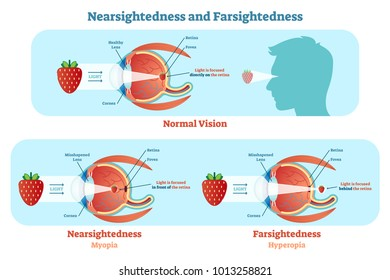 Far Sightedness and Near Sightedness vector illustration diagram, anatomical scheme. Medical educational information.