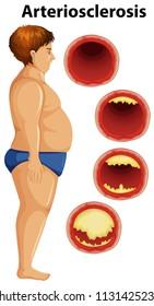 Fat man and arteriosclerosis illustration