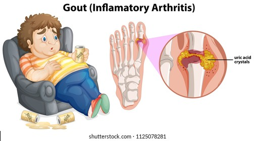 A Fat Man Gout on Foot illustration