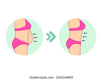 Fat on belly. Tummy before and after diet, fitness or liposuction. Vector illustration of woman belly.