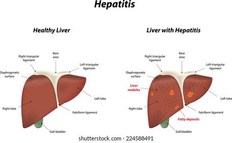 Liver anatomy labeled diagram stock illustration 220894729 fatty liver disease ccuart Image collections
