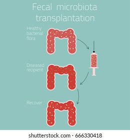 Fecal microbiota transplantation. Medical concept. Vector illustration.