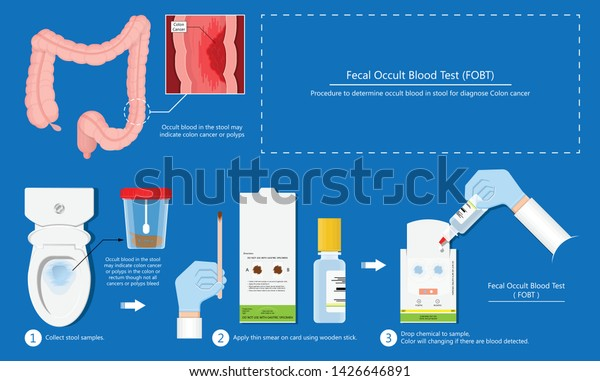 Fecal Occult Blood Test Fobt Lab Stock Vector Royalty Free 1426646891