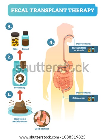 Fecal transplant therapy, procedure steps diagram, vector illustration. Healing human digestive microflora.Taking healthy stool from donor, processing and delivering to human body.