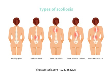 Female anatomy with different types of scoliosis. Medical vector illustration