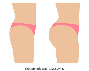 Female ass before and after plastic surgery. Concept of an increase in the buttocks. Vector illustration isolated on white, side view profile.