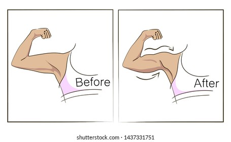 Female biceps and triceps before and after sport. Arms showing progress after fitness. Bent arm with bat wing vs well toned arm. Vector illustration for beauty, cosmetology, sport or medicine infograp