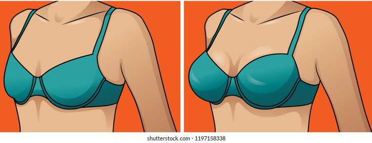 Female breast. Vector illustration