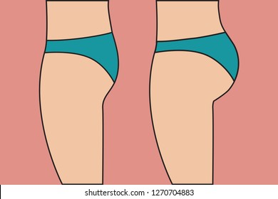 Female buttocks before and after correction of implants, changing shape of bottom with sports exercises, problem of flat ass. Vector illustration