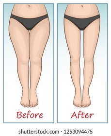 Female legs and hips before and after sports.