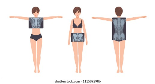 Female patient and her rib cage, pelvis and spine radiograph isolated on white background. Young woman and X-ray pictures of her skeletal system on monitor. Flat cartoon colorful vector illustration.
