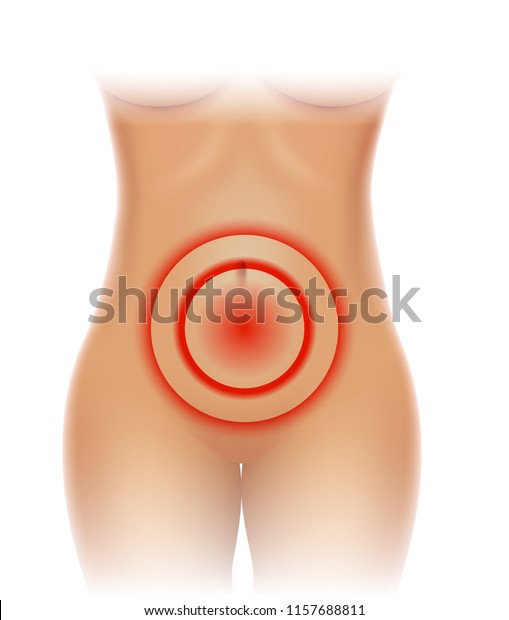 Female Pelvic Pain Lower Abdominal Pain Stock Vector Royalty Free 1157688811