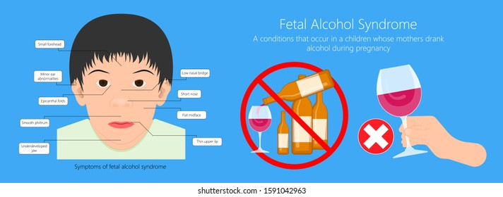 Fetal alcohol spectrum syndrome disorders conditions mother drank during pregnancy cause brain damage and birth defect in children facial