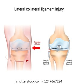 Fibular collateral ligament injury. joint anatomy. Vector illustration for biological, medical, science and educational use