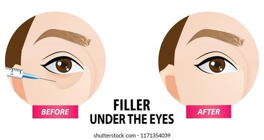 Filler injection under the eyes vector illustration