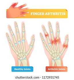 Finger arthritis vector illustration. Educational example of chronic skeleton and hand pain, inflammation, stiffness and autoimmune disorder. Patient diagnosis.