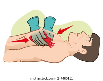 First Aid cardiac resuscitation (CPR), open heart massage. For resuscitation. Ideal for training materials, catalogs and institutional