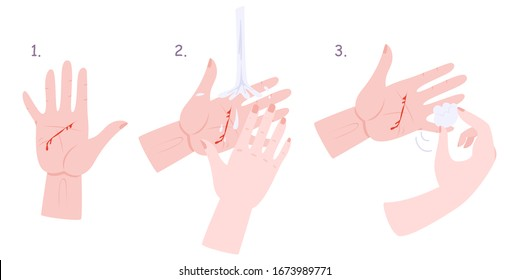 First aid treatment for wound infographic. Bleeding cut, pain in wound. Hand in blood, debridement.Isolated vector illustration in cartoon style