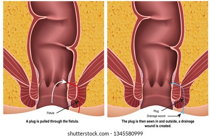 fistula plug medical vector illustration on white background with description