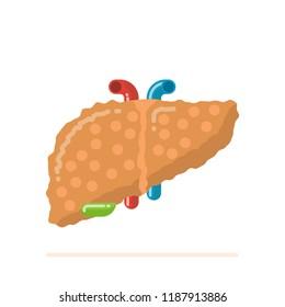 Flat design illustration of sick damaged fatty human liver with cirrhosis
