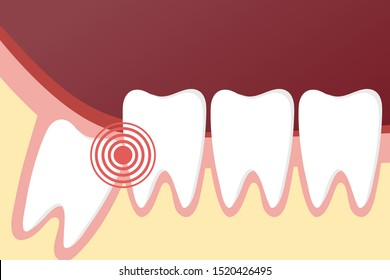 Flat toothache and dental problems concept with impacted wisdom tooth pushing healthy teeth. Vector illustration