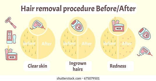 Flat vector hair removal aftereffects infographics. Comparison of hair removal before procedure and after effects view - clear skin, redness and ingrown hairs.