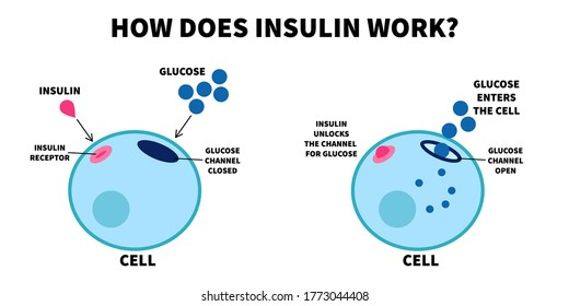 Flat vector illustration of importance of insulin. How does insulin work, educational medical visual diagram. Insulin unlocks glucose channel.