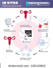 Flat In Vitro Fertilization IVF  Infographics
