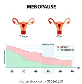fluctuation of hormones that occurs during menopause. Menopause as a stage in women's lives when their bodies lose the ability to produce enough hormones that keep the body balanced and healthy