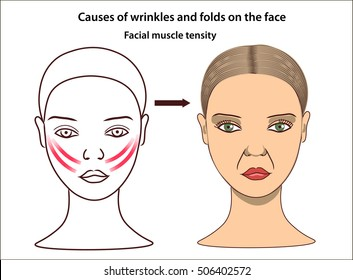 Folds and wrinkles on the face of young woman. Causes of wrinkles. Facial muscle tensity