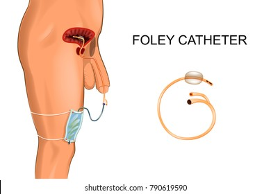 Foley catheter. a bag to collect urine
