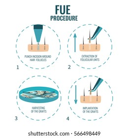 Follicular unit extraction procedure stages.  FUE hair loss treatment steps. Alopecia infographic medical design template for transplantation clinics and diagnostic centers. Vector illustration.