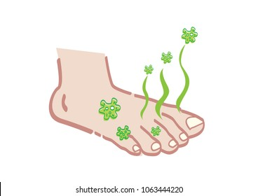 Foot with Bad Odor Causing Bacteria or Disease. Editable Clip Art.