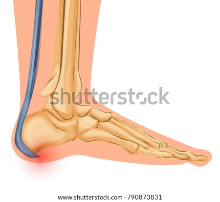 Foot Bone Anatomy Vector Illustration Medical Stock Vector (Royalty ...