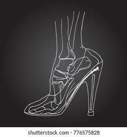 Foot bones of woman wearing high heels. Hand drawn vector illustration
