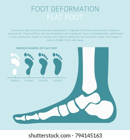 Foot deformation as medical desease infographic. Causes of Flat foot. Vector illustration