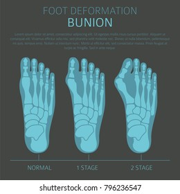 Foot deformation as medical disease infographic. Causes of bunion. Vector illustration