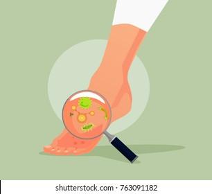 Foot fungus. Vector flat cartoon illustration