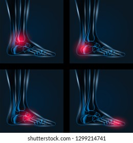 Foot pain X ray 4 set. Healthy joint and unhealthy painful joint with Arthritis rheumatoid and gout.